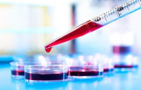 Troponine I-serumwaarde helpt het risico op cardiovasculaire ziekten te voorspellen