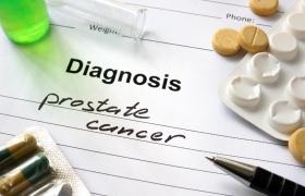 Prostaatcarcinoom – liever kortere overleving als daarmee bijwerkingen voorkomen worden