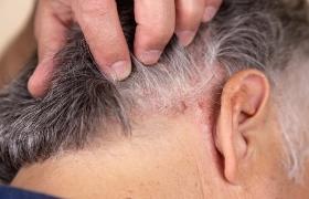 Risico op psoriasis verhoogd bij volwassenen die kanker overleven