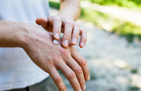 Huidbijwerkingen bij immuuntherapie met checkpointremmers