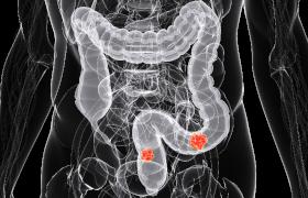 Genexpressieniveau kan prognose van colorectaal carcinoom helpen voorspellen