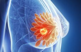 Geslachtshormonen bij transgenderpersonen spelen een rol bij het risico op borstkanker