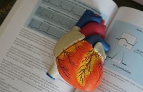 Studie kan helpen de zorg voor onregelmatige hartslag te verbeteren bij patiënten met HCM