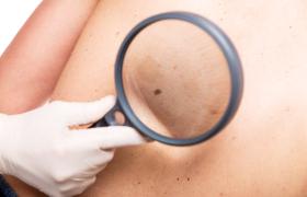 Kunstmatige intelligentie om de metastasering van melanoom te voorspellen