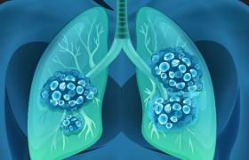 Stadium IV ALK+ longkanker – een stuk positiever vooruitzicht dan 15 jaar geleden
