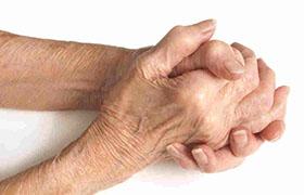 Starten met tocilizumab effectief bij beginnende reumatoïde artritis