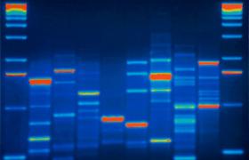 Genetische test voorspelt accuraat het risico op metastasen bij hormoongevoelige borstkanker