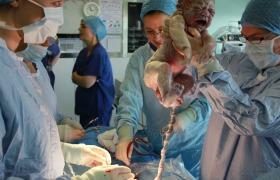 Microbirthing: wel of geen goed idee?
