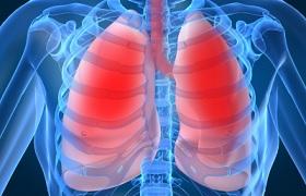 Nivolumab en chemotherapie in de eerste lijn geassocieerd met vergelijkbare overleving longcarcinoom