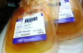 Trombocytentransfusie na hersenbloeding werkt niet bij antistollingsmiddelengebruiker