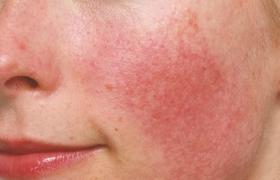 Oorzaak van huidproblemen in de winter ontrafeld