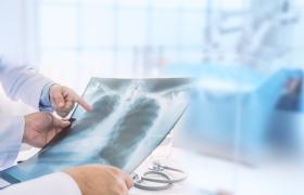 Kunstmatige intelligentie helpt artsen bij longdiagnostiek