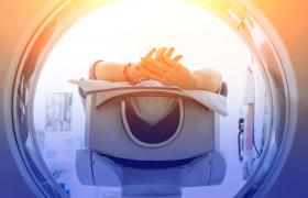 PET-scan kan effect van behandeling met checkpointremmers voorspellen