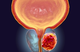 Nivolumab plus ipilimumab bij gemetastaseerd prostaatcarcinoom: een bescheiden positief effect
