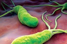 Association found between Helicobacter Pylori and Multiple Sclerosis