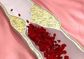 Preventing artery stiffness and the danger of depression after cancer