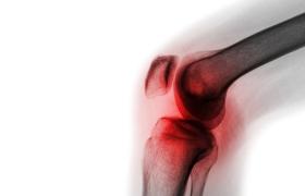 Aspirine is een goed antitromboticum na knieoperatie