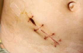 Removal of inflamed appendix not always necessary