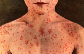 Measles vaccine: additional protection against other infections?